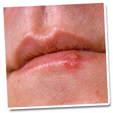herpes - need treatment and cure